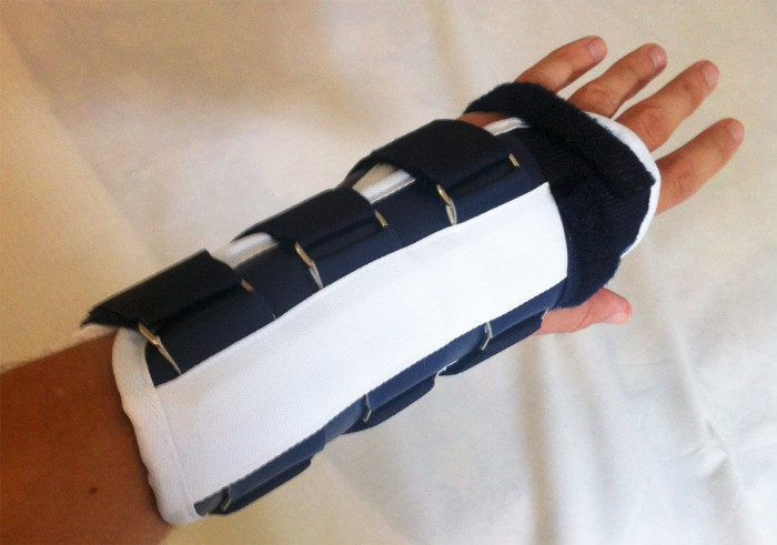 The splint